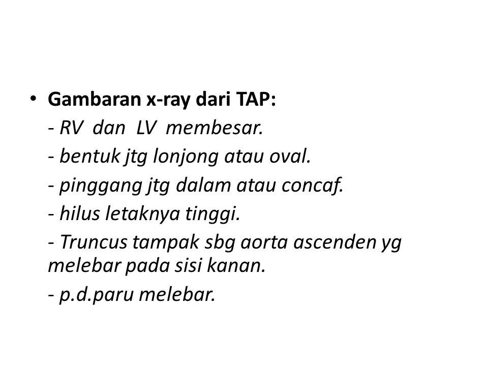 Gambaran x-ray dari TAP: - RV dan LV membesar. - bentuk jtg lonjong atau oval. - pinggang jtg dalam atau concaf. - hilus letaknya tinggi. - Truncus ta