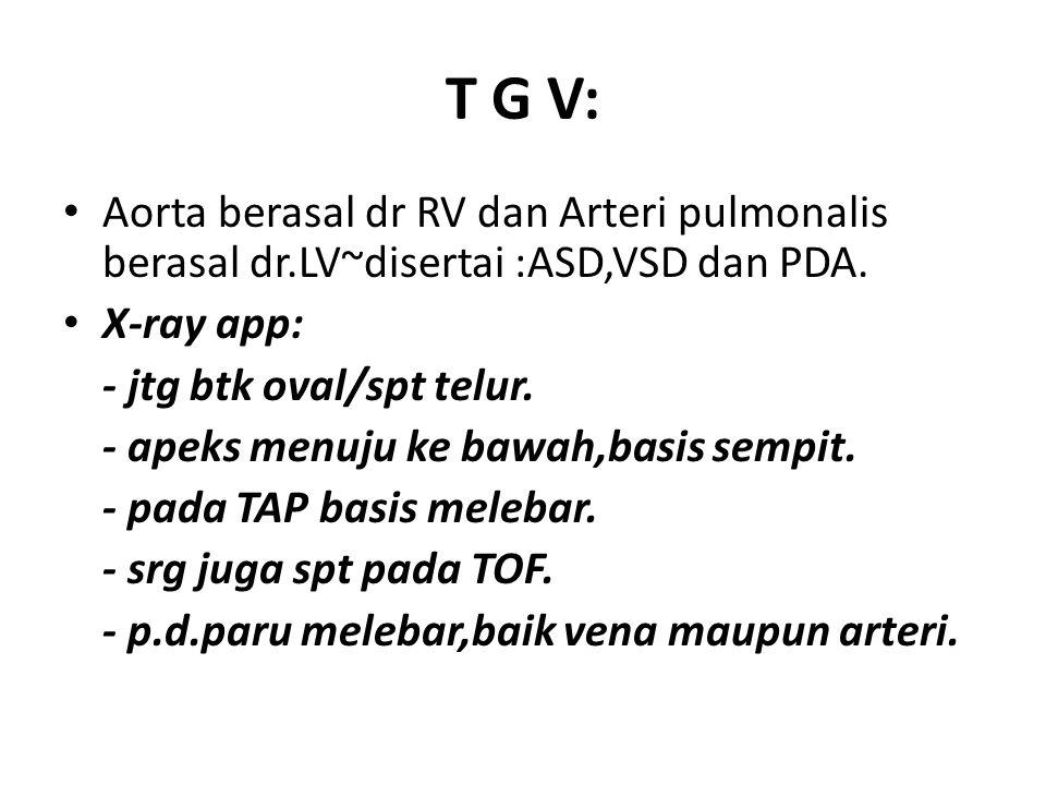 T G V: Aorta berasal dr RV dan Arteri pulmonalis berasal dr.LV~disertai :ASD,VSD dan PDA. X-ray app: - jtg btk oval/spt telur. - apeks menuju ke bawah