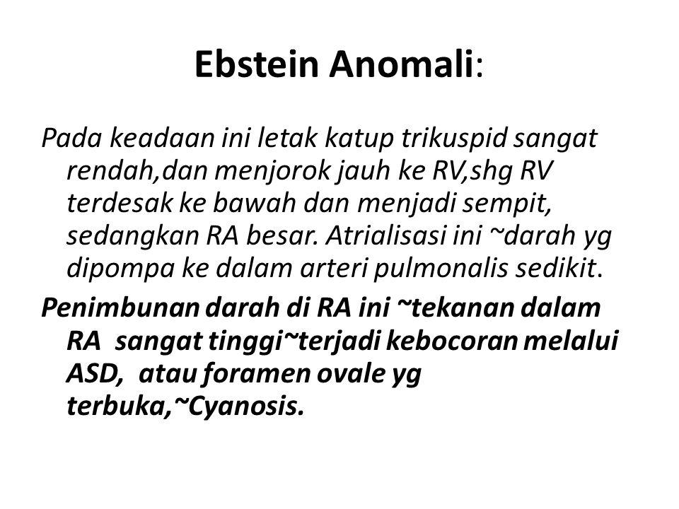 Ebstein Anomali: Pada keadaan ini letak katup trikuspid sangat rendah,dan menjorok jauh ke RV,shg RV terdesak ke bawah dan menjadi sempit, sedangkan R