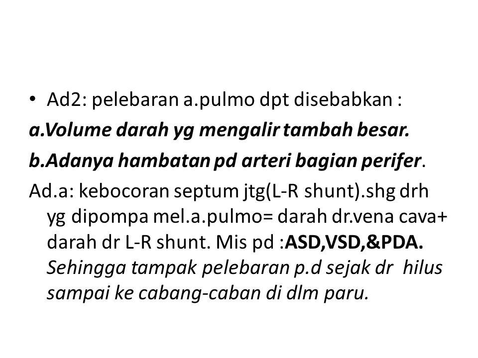 Ad2: pelebaran a.pulmo dpt disebabkan : a.Volume darah yg mengalir tambah besar. b.Adanya hambatan pd arteri bagian perifer. Ad.a: kebocoran septum jt
