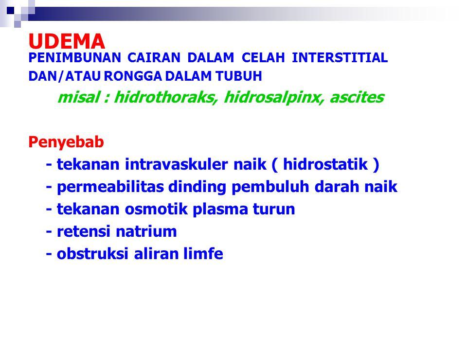 UDEMA PENIMBUNAN CAIRAN DALAM CELAH INTERSTITIAL DAN/ATAU RONGGA DALAM TUBUH misal : hidrothoraks, hidrosalpinx, ascites Penyebab - tekanan intravasku