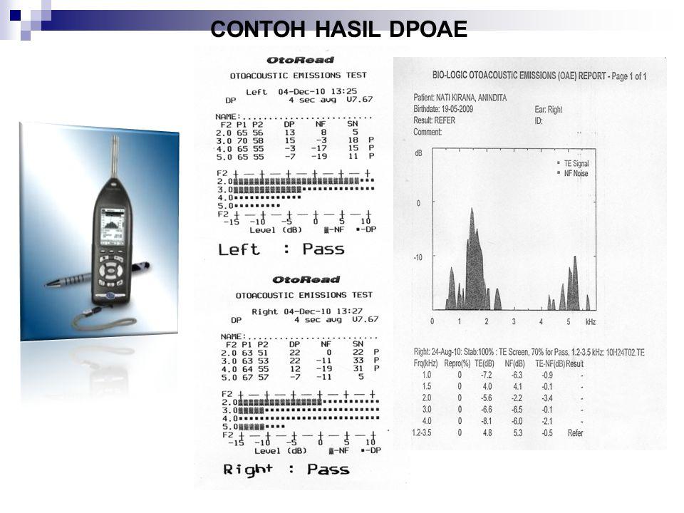 Otoacustic Emision (OAE) TUJUAN PEMERIKSAAN OAE: Adalah untuk menentukan kondisi cochlea, khususnya fungsi sel-sel rambut luar (Outer Hair Cell=OHC) p