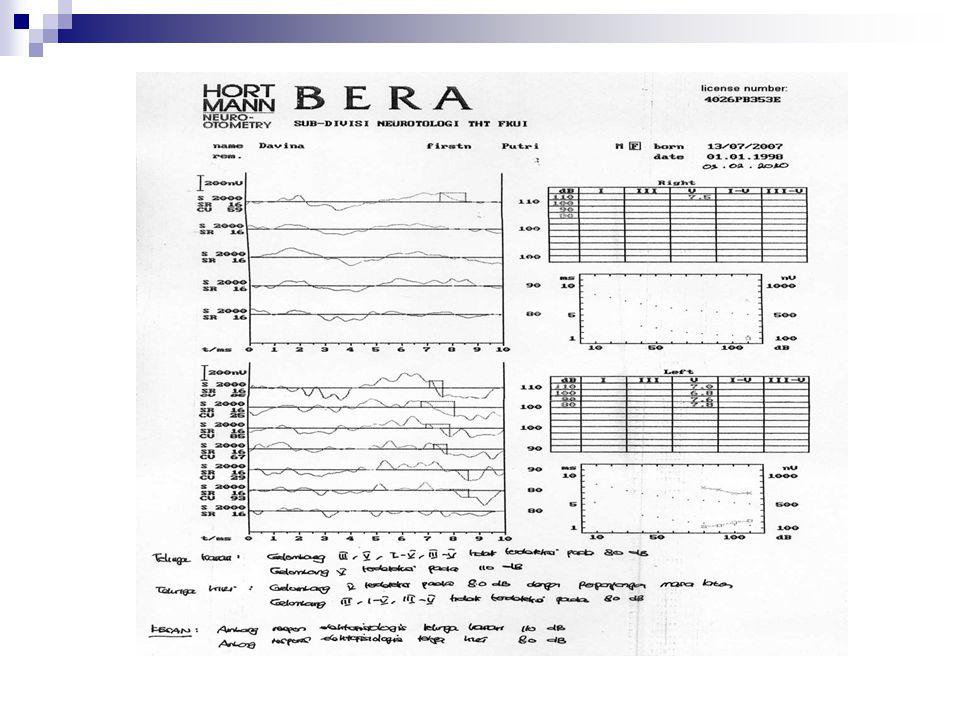 BERA BERA merupakan: Suatu potential listrik di otak, sebagai akibat rangsangan bunyi, yang direkam dengan menem- pelkan elektroda di kulit kepala.