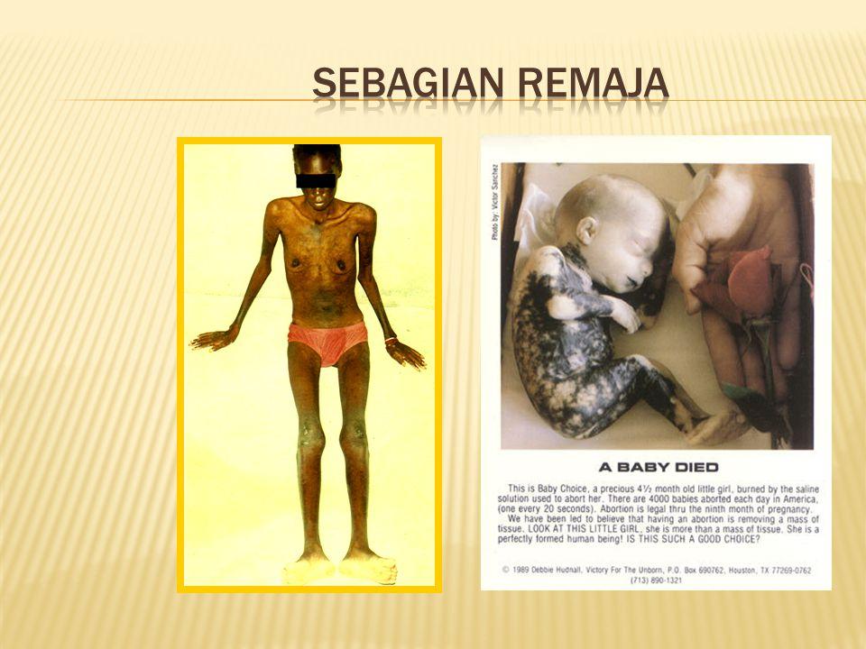sehat  Kesehatan reproduksi remaja adalah suatu kondisi sehat yg menyangkut sistem, fungsi dan proses reproduksi yg dimiliki oleh remaja.