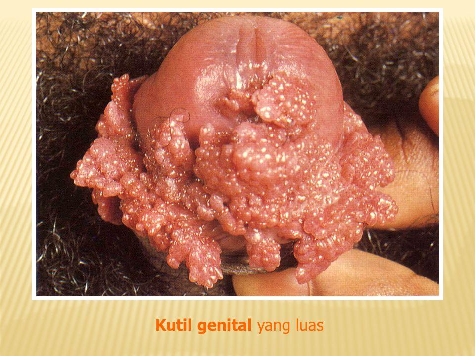 Kutil genital yang luas