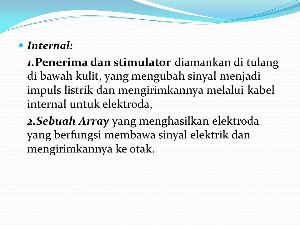 Internal: 1.Penerima dan stimulator diamankan di tulang di bawah kulit, yang mengubah sinyal menjadi impuls listrik dan mengirimkannya melalui kabel i
