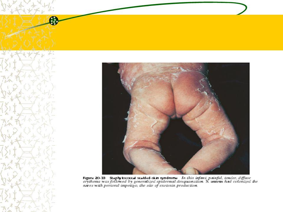 Hidradenitis supurativa Infeksi kelenjar apokrin Biasanya oleh S. aureus Pubertas, dewasa muda Ketiak, perineum Predisposisi: trauma/mikrotrauma, hipe