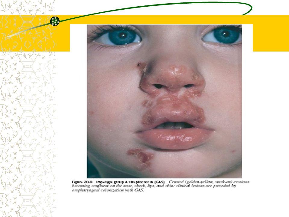 Impetigo Krustosa Biasanya karena Streptococcus ß haemolyticus Anak Wajah,yi periorifisium (mulut, hidung) Tanpa gejala sistemik Eritema & vesikel yg