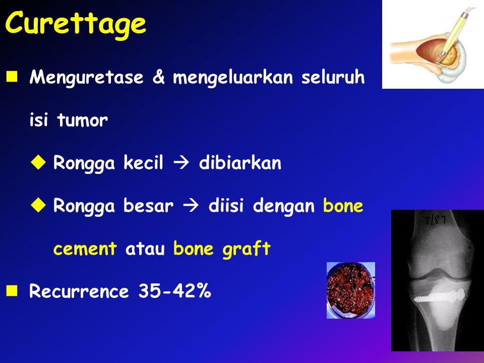 Curettage Menguretase & mengeluarkan seluruh isi tumor  Rongga kecil  dibiarkan  Rongga besar  diisi dengan bone cement atau bone graft Recurrence