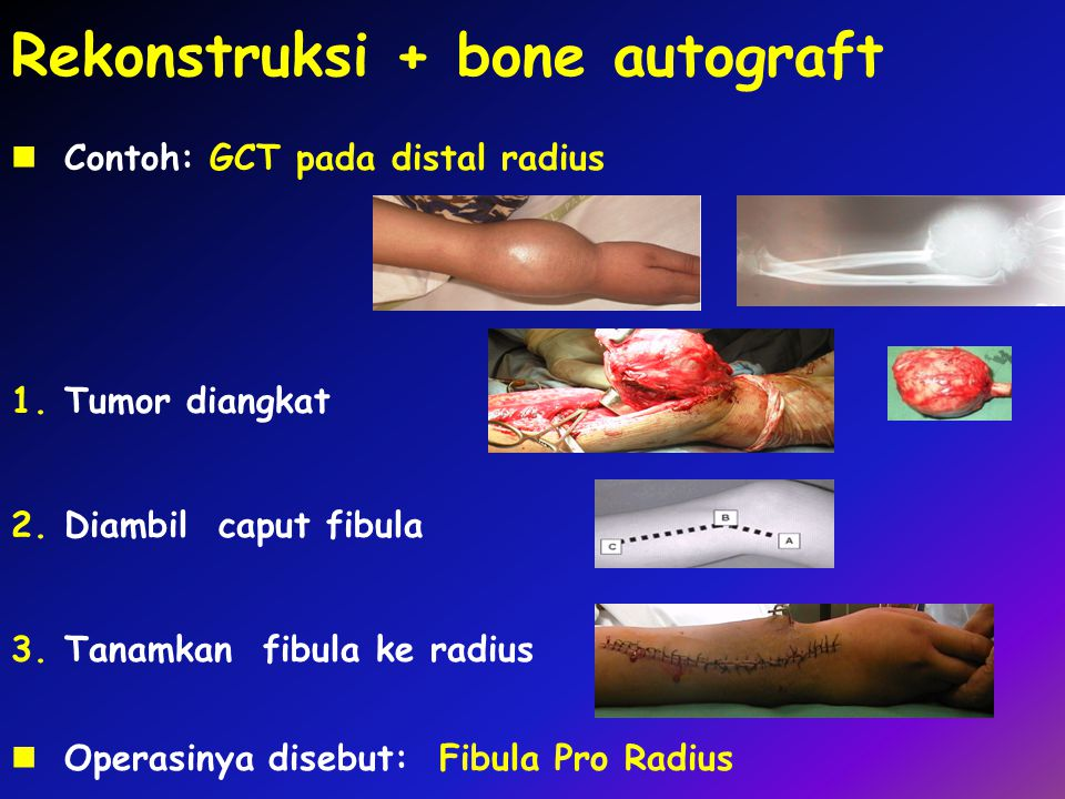 Rekonstruksi + bone autograft Contoh: GCT pada distal radius 1.Tumor diangkat 2.Diambil caput fibula Operasinya disebut: Fibula Pro Radius 3.Tanamkan fibula ke radius