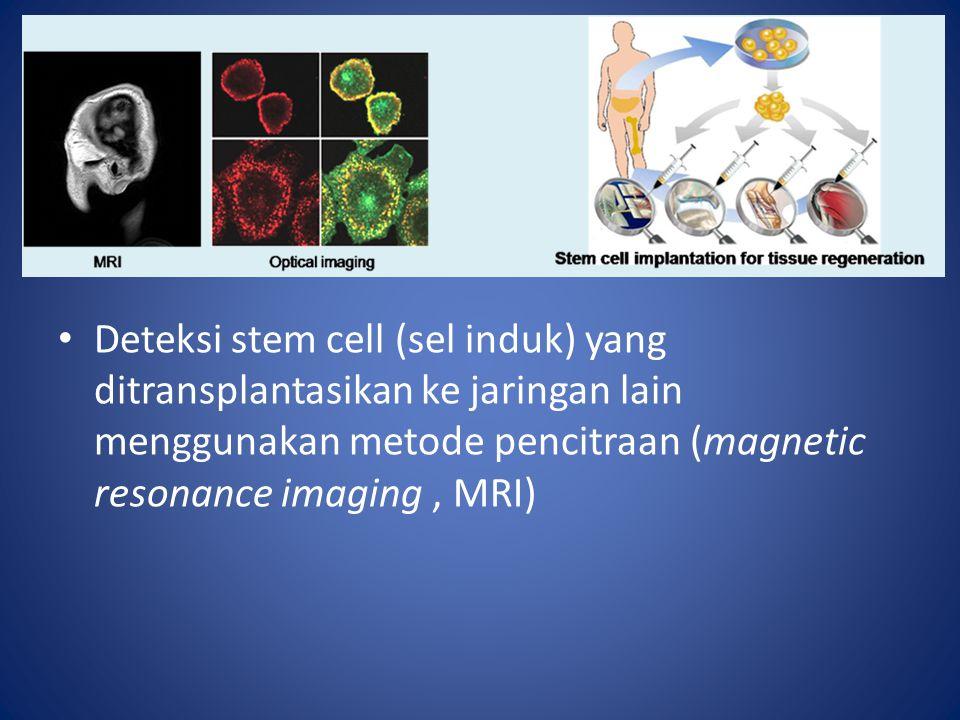 Deteksi stem cell (sel induk) yang ditransplantasikan ke jaringan lain menggunakan metode pencitraan (magnetic resonance imaging, MRI)