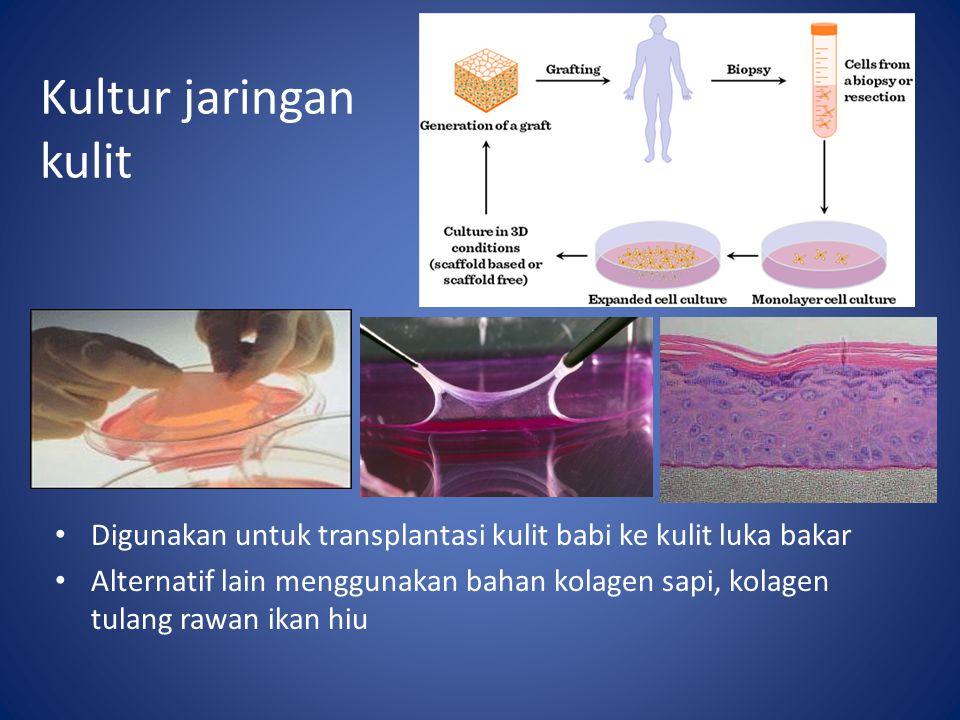 Kultur jaringan kulit Digunakan untuk transplantasi kulit babi ke kulit luka bakar Alternatif lain menggunakan bahan kolagen sapi, kolagen tulang rawa