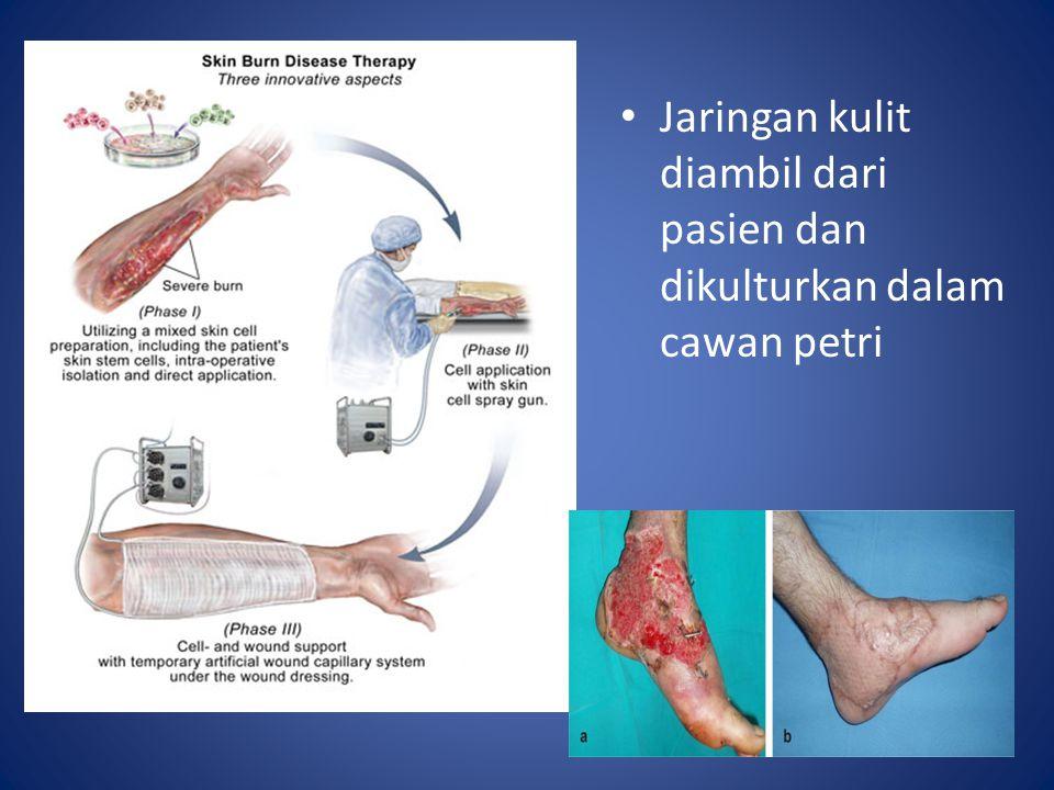 Jaringan kulit diambil dari pasien dan dikulturkan dalam cawan petri