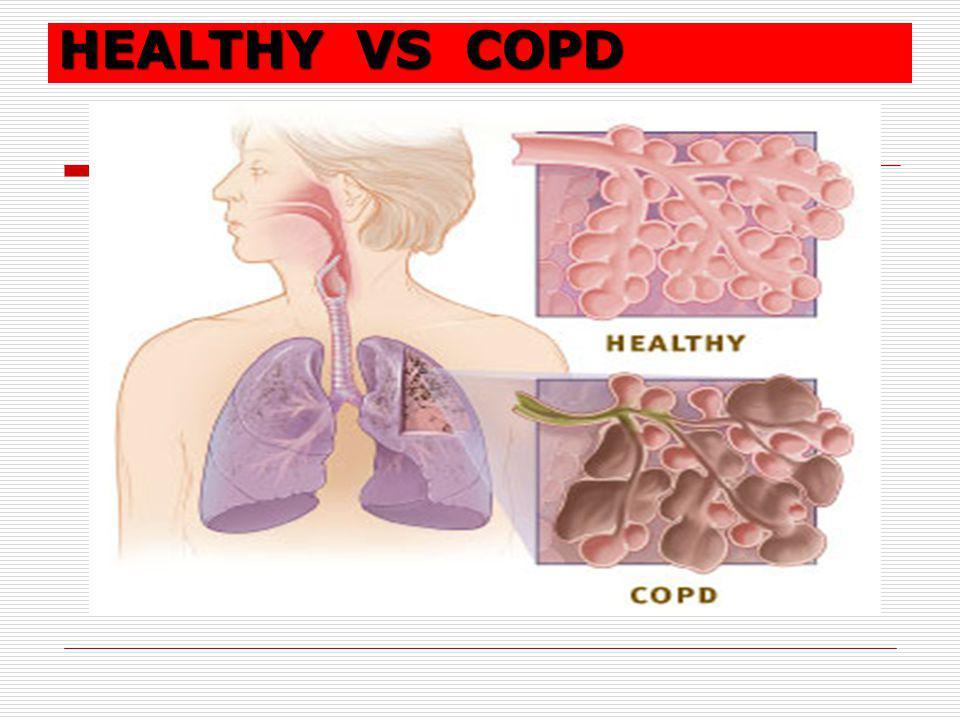 HEALTHY VS COPD