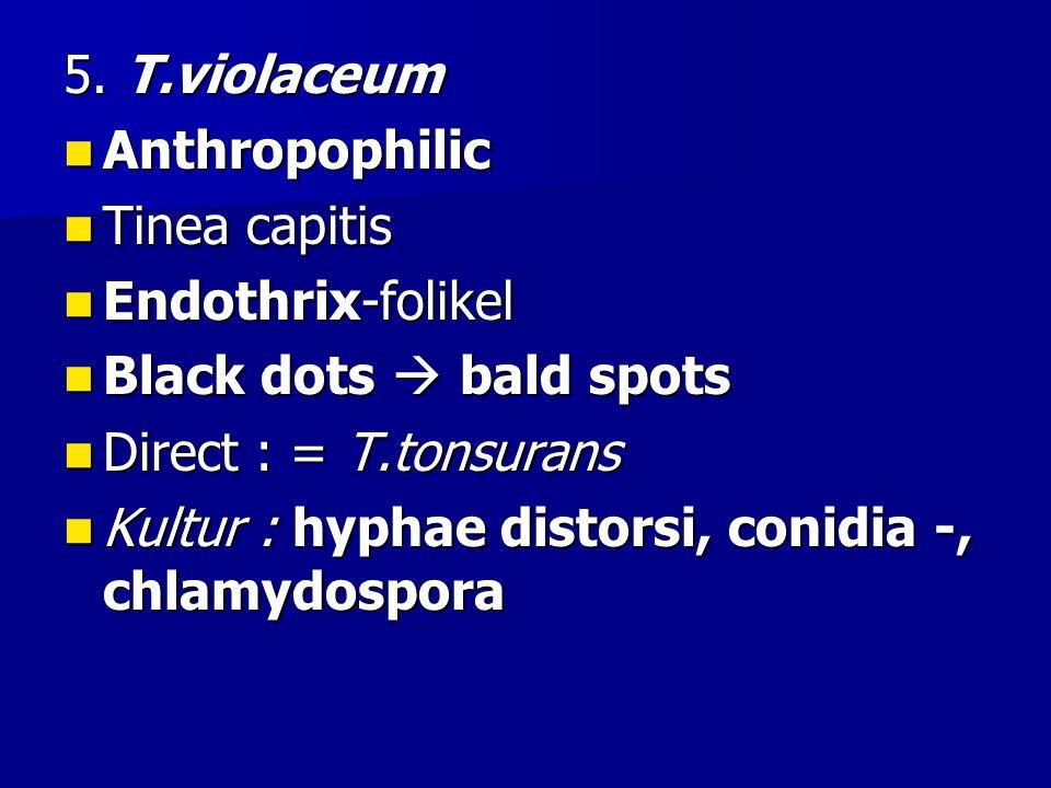 5. T.violaceum Anthropophilic Anthropophilic Tinea capitis Tinea capitis Endothrix-folikel Endothrix-folikel Black dots  bald spots Black dots  bald