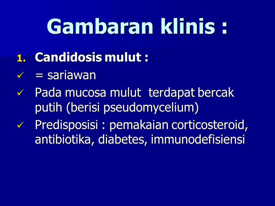 Gambaran klinis : 1. Candidosis mulut : = sariawan = sariawan Pada mucosa mulut terdapat bercak putih (berisi pseudomycelium) Pada mucosa mulut terdap