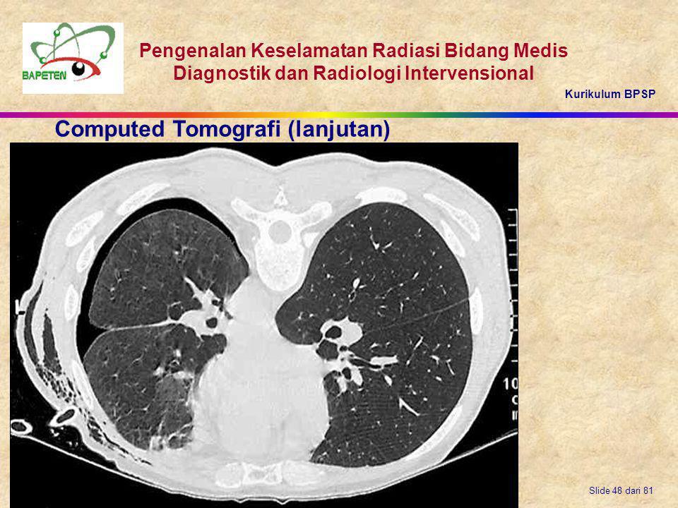 Kurikulum BPSP Pengenalan Keselamatan Radiasi Bidang Medis Diagnostik dan Radiologi Intervensional Slide 48 dari 81 Computed Tomografi (lanjutan)