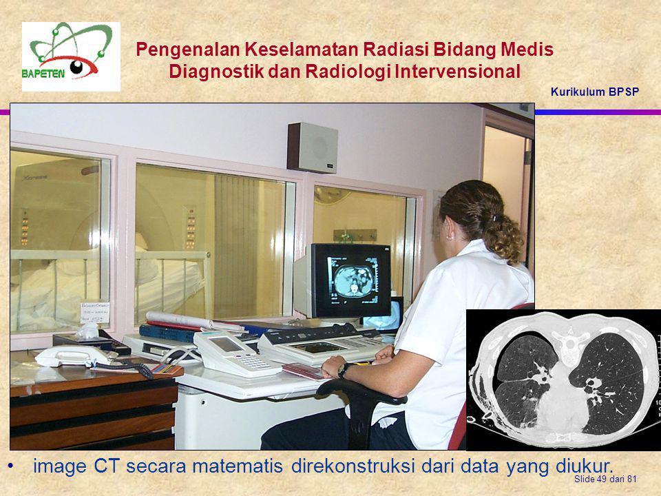 Kurikulum BPSP Pengenalan Keselamatan Radiasi Bidang Medis Diagnostik dan Radiologi Intervensional Slide 49 dari 81 image CT secara matematis direkons
