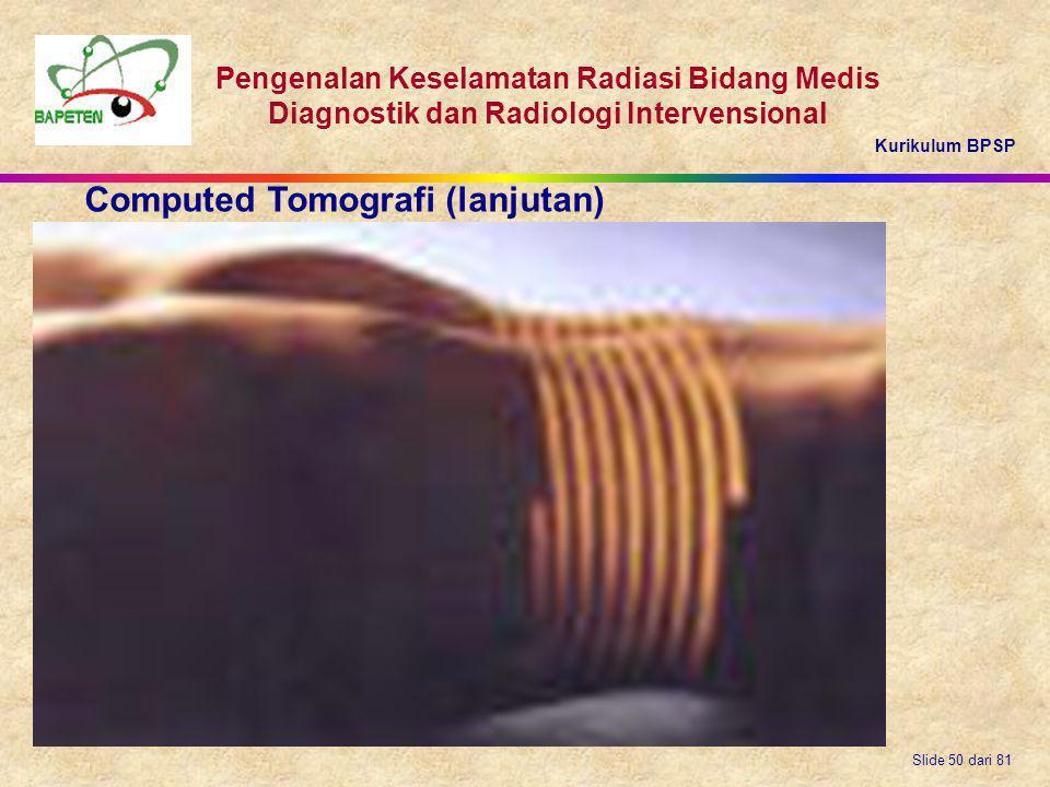 Kurikulum BPSP Pengenalan Keselamatan Radiasi Bidang Medis Diagnostik dan Radiologi Intervensional Slide 50 dari 81 Computed Tomografi (lanjutan)