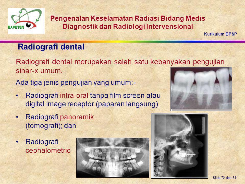Kurikulum BPSP Pengenalan Keselamatan Radiasi Bidang Medis Diagnostik dan Radiologi Intervensional Slide 72 dari 81 Ada tiga jenis pengujian yang umum