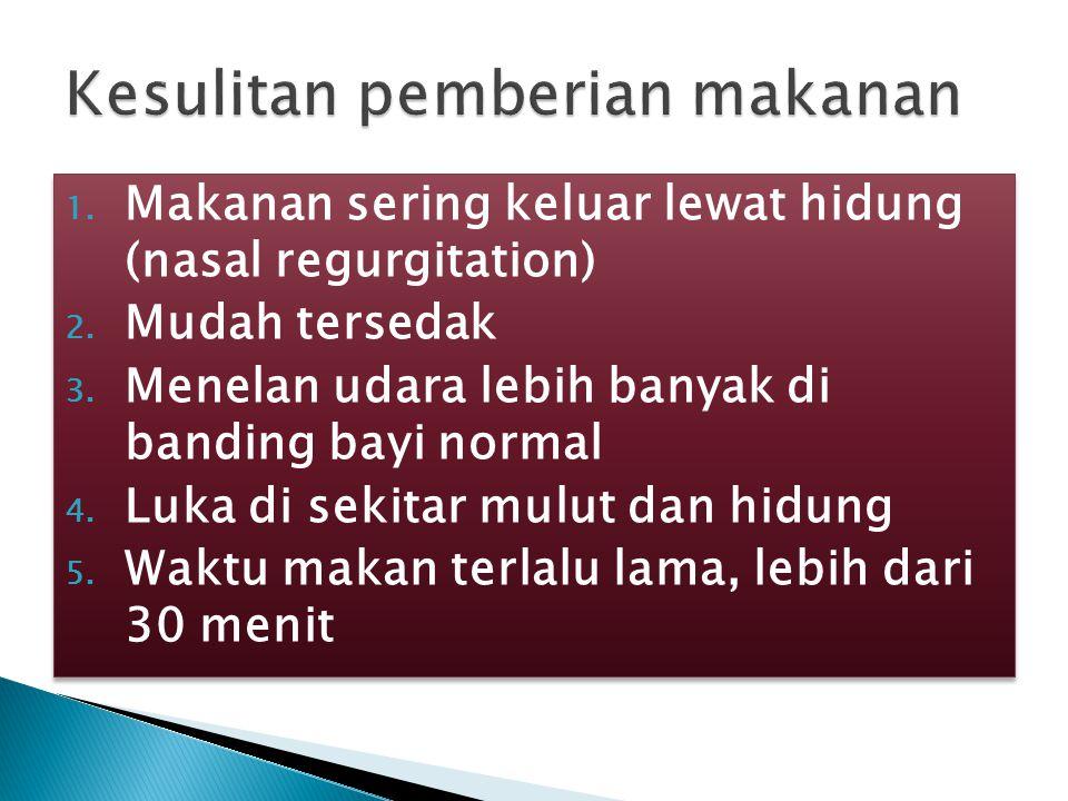 1.ASI ◦ pada unilateral cleft,asi diberikan pada sisi yang normal 2.