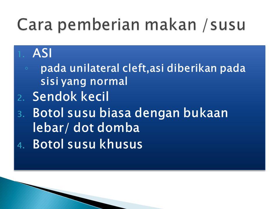 1. ASI ◦ pada unilateral cleft,asi diberikan pada sisi yang normal 2. Sendok kecil 3. Botol susu biasa dengan bukaan lebar/ dot domba 4. Botol susu kh