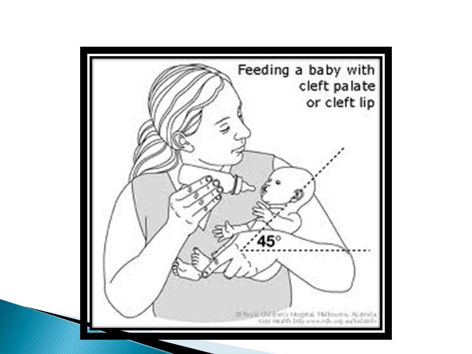 Menggunakan alat khusus ◦ Dot domba  Karena udara bocor disekitar sumbing dan makanan dimuntahkan melalui hidung, bayi tersebut lebih baik diberi makan dengan dot yang diberi pegangan yang menutupi sumbing, suatu dot domba (dot yang besar, ujung halus dengan lubang besar), atau hanya dot biasa dengan lubang besar.