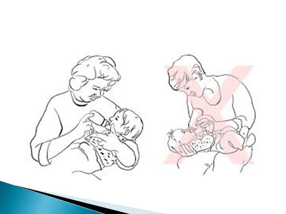 Botol peras  Dengan memeras botol, maka susu dapat didorong jatuh di bagian belakang mulut hingga dapat dihisap bayi Ortodonsi  Pemberian plat/ dibuat okulator untuk menutup sementara celah palatum agar memudahkan pemberian minum dan sekaligus mengurangi deformitas palatum sebelum dapat dilakukan tindakan bedah definitive