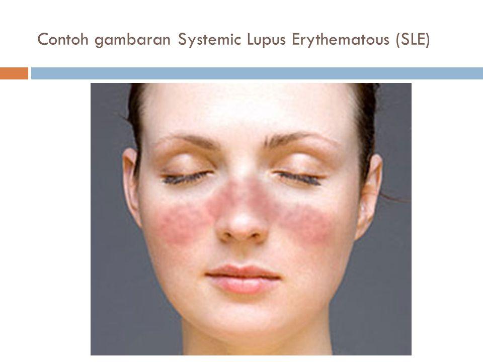 Contoh gambaran Systemic Lupus Erythematous (SLE)