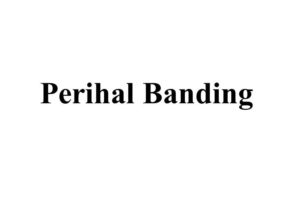 Perihal Banding