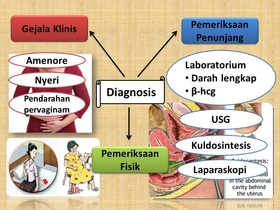 Diagnosis Gejala Klinis Pemeriksaan Fisik Pemeriksaan Penunjang Laboratorium Darah lengkap β-hcg Pendarahan pervaginam Nyeri Amenore USG Kuldosintesis Laparaskopi
