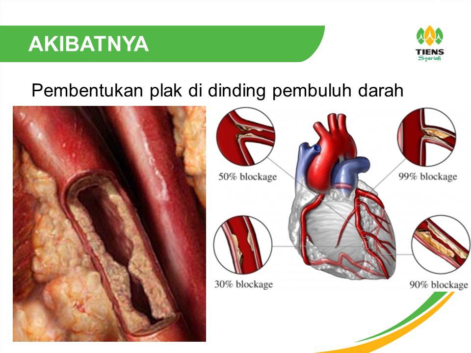 AKIBATNYA Pembentukan plak di dinding pembuluh darah