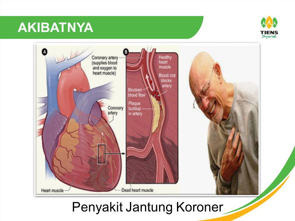 Penyakit Jantung Koroner AKIBATNYA