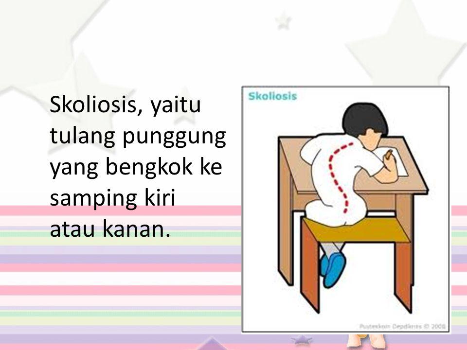 Skoliosis, yaitu tulang punggung yang bengkok ke samping kiri atau kanan.