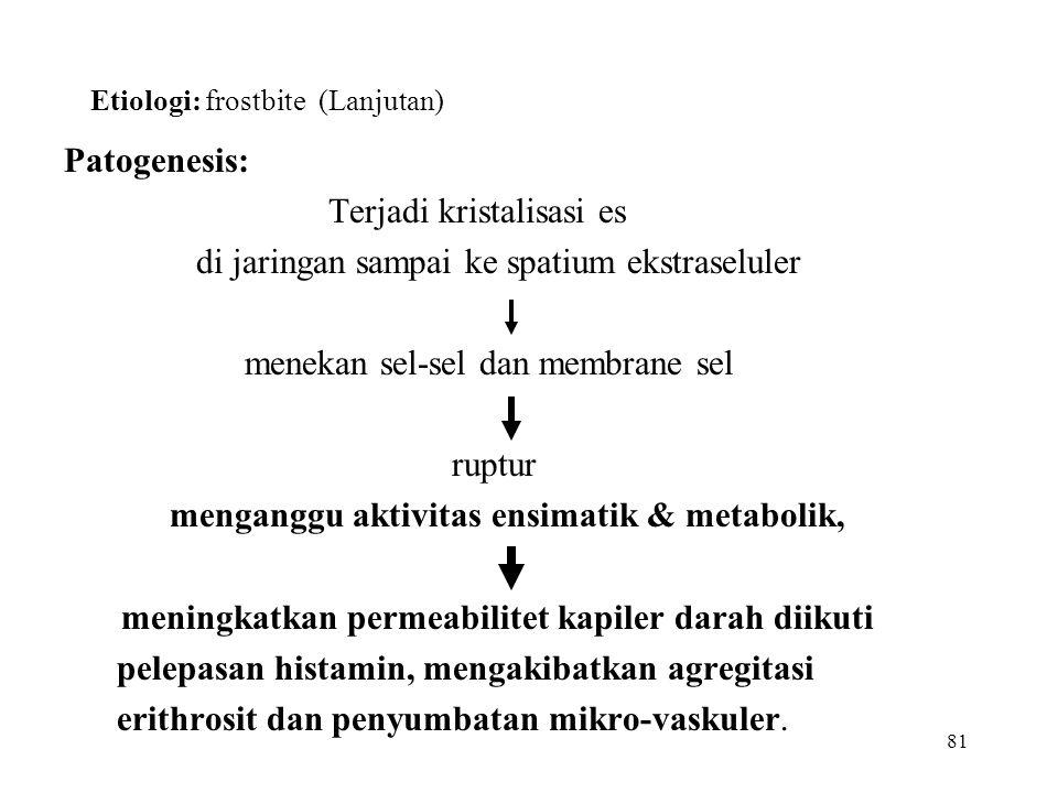 81 Etiologi: frostbite (Lanjutan) Patogenesis: Terjadi kristalisasi es di jaringan sampai ke spatium ekstraseluler menekan sel-sel dan membrane sel ru