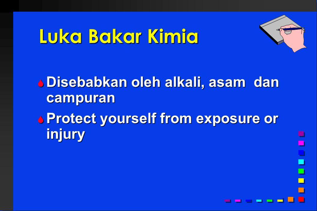 Luka Bakar Kimia  Disebabkan oleh alkali, asam dan campuran  Protect yourself from exposure or injury