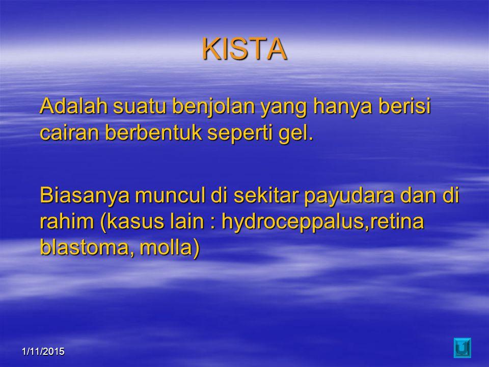 1/11/201510 KISTA Adalah suatu benjolan yang hanya berisi cairan berbentuk seperti gel. Biasanya muncul di sekitar payudara dan di rahim (kasus lain :