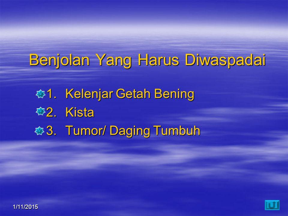 1/11/20158 Benjolan Yang Harus Diwaspadai 1.Kelenjar Getah Bening 2.Kista 3.Tumor/ Daging Tumbuh