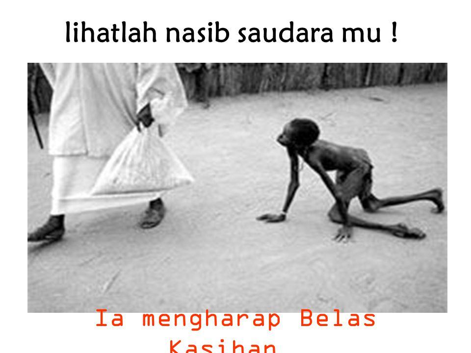 lihatlah nasib saudara mu ! Ia mengharap Belas Kasihan …