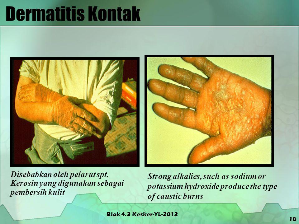 Dermatitis Kontak Blok 4.3 Kesker-YL-2013 18 Disebabkan oleh pelarut spt. Kerosin yang digunakan sebagai pembersih kulit Strong alkalies, such as sodi