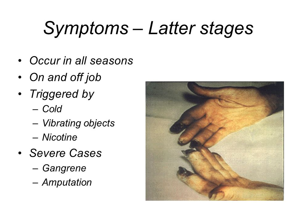 Symptoms – Latter stages Occur in all seasons On and off job Triggered by –Cold –Vibrating objects –Nicotine Severe Cases –Gangrene –Amputation
