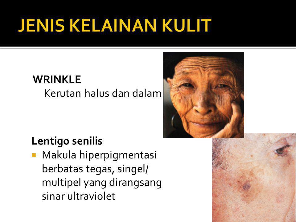Lentigo senilis  Makula hiperpigmentasi berbatas tegas, singel/ multipel yang dirangsang sinar ultraviolet WRINKLE Kerutan halus dan dalam