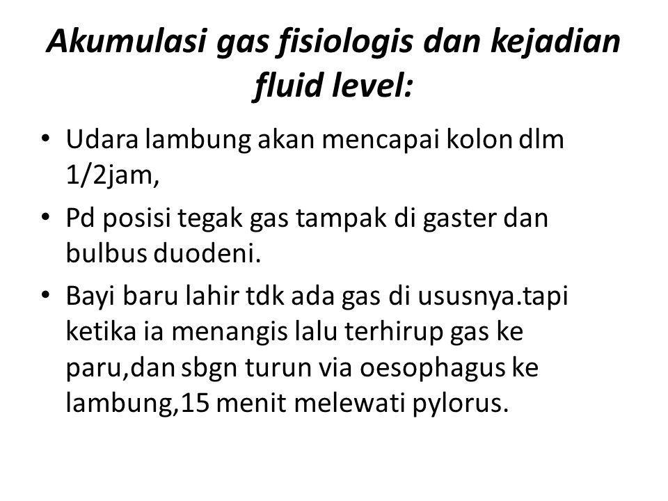 Akumulasi gas fisiologis dan kejadian fluid level: Udara lambung akan mencapai kolon dlm 1/2jam, Pd posisi tegak gas tampak di gaster dan bulbus duodeni.
