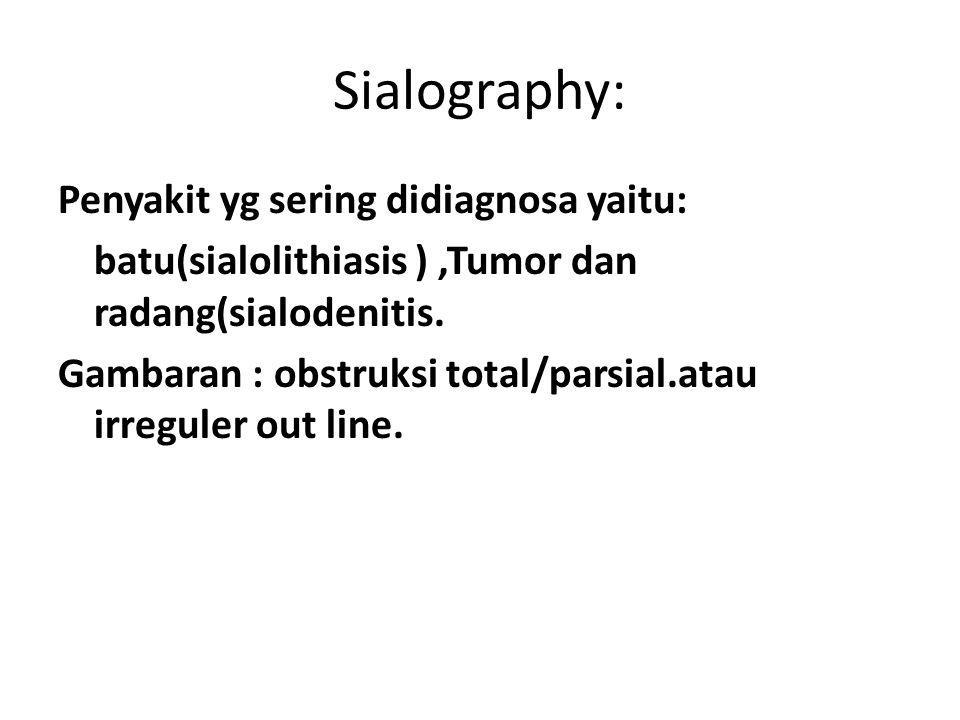 Sialography: Penyakit yg sering didiagnosa yaitu: batu(sialolithiasis ),Tumor dan radang(sialodenitis. Gambaran : obstruksi total/parsial.atau irregul