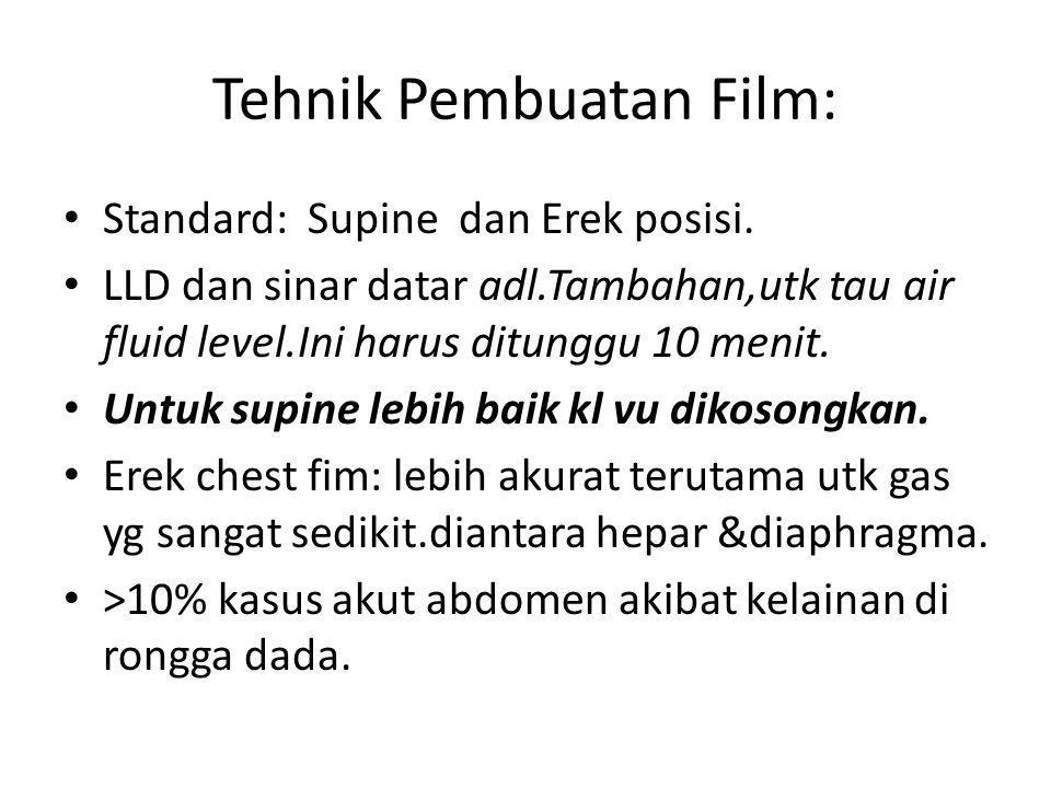 Tehnik Pembuatan Film: Standard: Supine dan Erek posisi. LLD dan sinar datar adl.Tambahan,utk tau air fluid level.Ini harus ditunggu 10 menit. Untuk s
