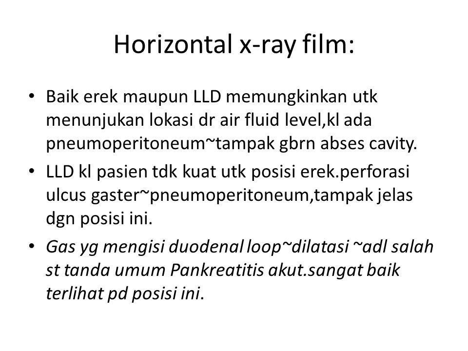 Horizontal x-ray film: Baik erek maupun LLD memungkinkan utk menunjukan lokasi dr air fluid level,kl ada pneumoperitoneum~tampak gbrn abses cavity. LL