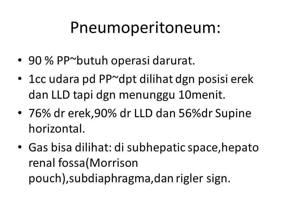 Pneumoperitoneum: 90 % PP~butuh operasi darurat. 1cc udara pd PP~dpt dilihat dgn posisi erek dan LLD tapi dgn menunggu 10menit. 76% dr erek,90% dr LLD