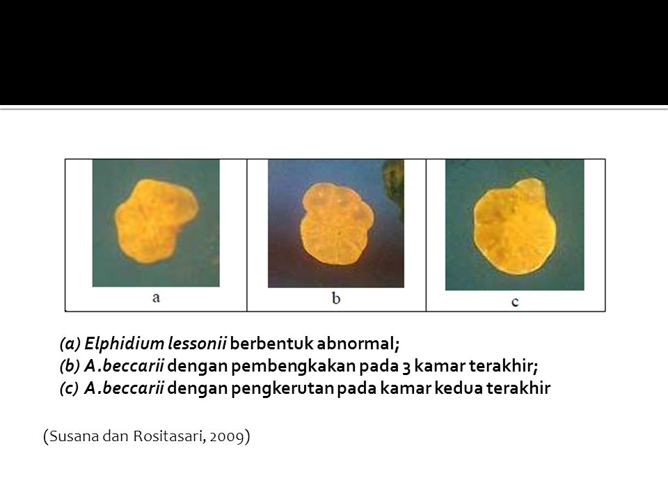 (a)Elphidium lessonii berbentuk abnormal; (b)A.beccarii dengan pembengkakan pada 3 kamar terakhir; (c)A.beccarii dengan pengkerutan pada kamar kedua terakhir (Susana dan Rositasari, 2009)