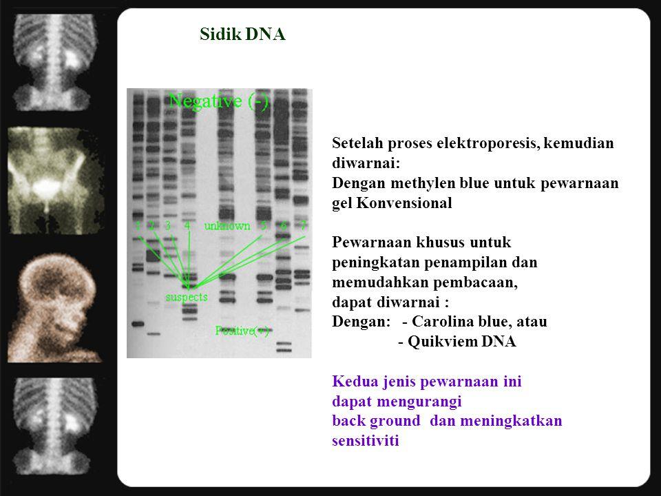 Sidik DNA Setelah proses elektroporesis, kemudian diwarnai: Dengan methylen blue untuk pewarnaan gel Konvensional Pewarnaan khusus untuk peningkatan p