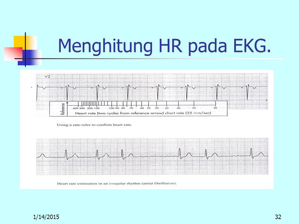 1/14/201532 Menghitung HR pada EKG.